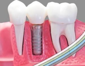 Implantat - capped-300x232